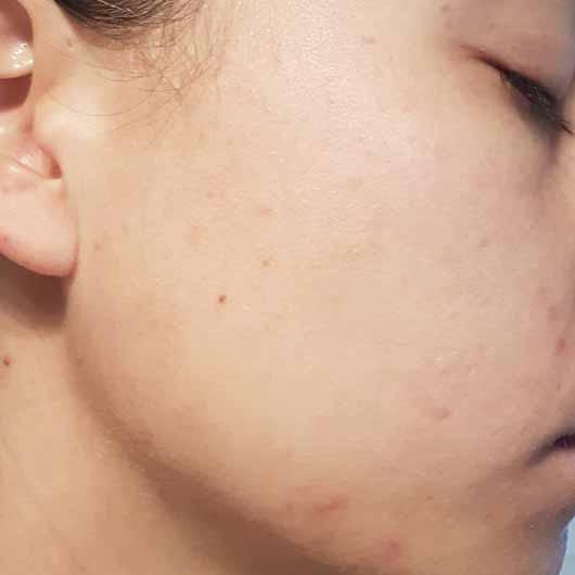 Alcina Skin Manager Perfektionist - Hautbild vor der Anwendung