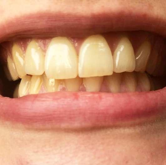 Curaprox [BE YOU.] Pure Happiness Set - Zähne vor der Anwendung