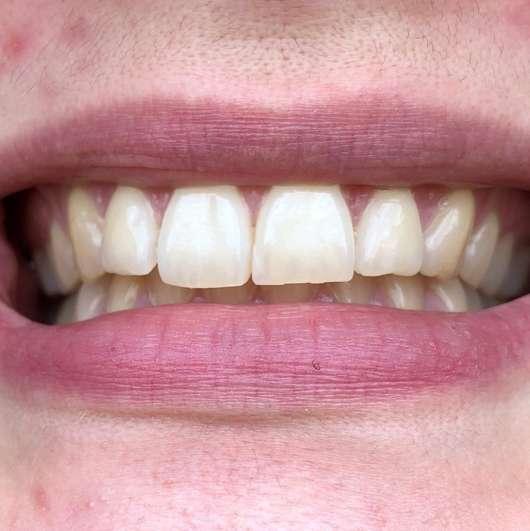 Curaprox [BE YOU.] Pure Happiness Set - Zähne nach 4 Wochen Anwendung