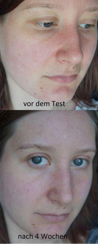 Haut zu Testbeginn und nach 4-wöchigem Test