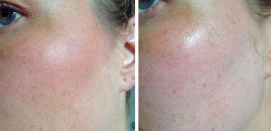 Haut vor (links) und nach (rechts) Verwendung des Pixi Rose Cream Cleansers
