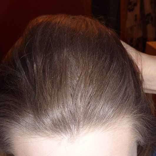 LANGHAARMÄDCHEN Pure Frische Trockenshampoo - Haare mit Schuppenbildung