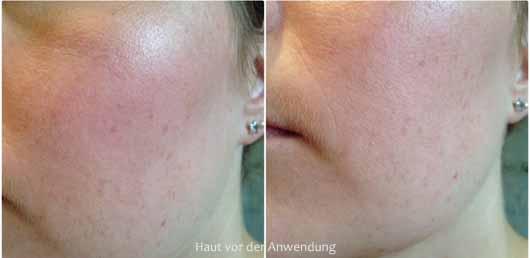 L.O.V PERFECTitude 3in1 Matte & Fix Spray - Haut vor der Anwendung