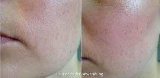 L.O.V PERFECTitude 3in1 Matte & Fix Spray - Haut nach der Anwendung
