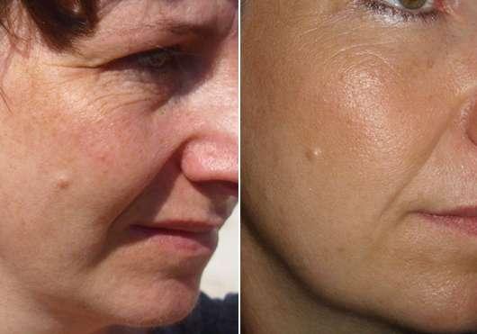 Haut ohne (links) und mit (rechts) MANHATTAN 2in1 Perfect Teint Powder & Make Up, Farbe: 20 Peach