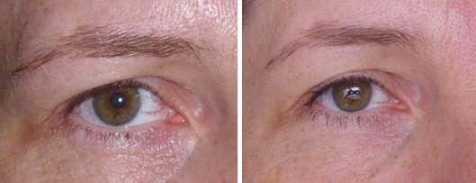 Auge ohne und mit Maybelline New York Falsche Wimpern Feder-Look Volum' Express Mascara