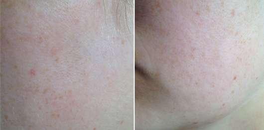 Haut nach 4-wöchigem Test - Pixi Rose Cream Cleansers