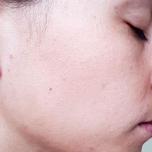 VICHY NORMADERM Reinigungs-Gel (gegen Hautunreinheiten) - Haut vor der Anwendung