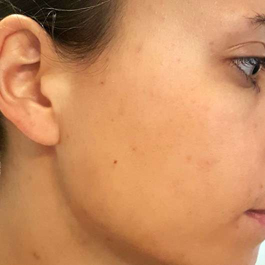 VICHY NORMADERM Reinigungs-Gel (gegen Hautunreinheiten) - Haut nach der Anwendung