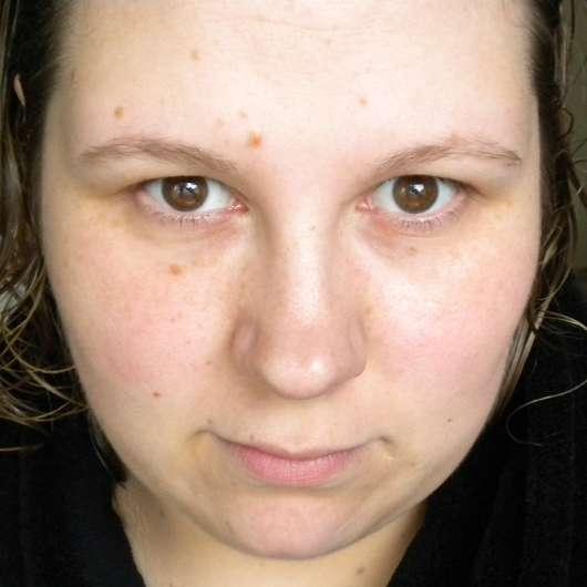 Hautbild nach der 6-wöchigen Testphase