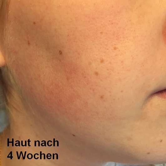 Haut nach 4-wöchigem Test - BIO: VÉGANE Bio Grüntee Glow Fluid
