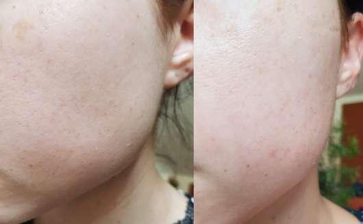 links: Haut vor der Anwendung, rechts: Haut nach 4 Wochen Anwendung