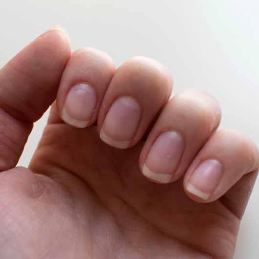essence hydra nail care serum - Nägel und Nagelhaut nach der Testphase