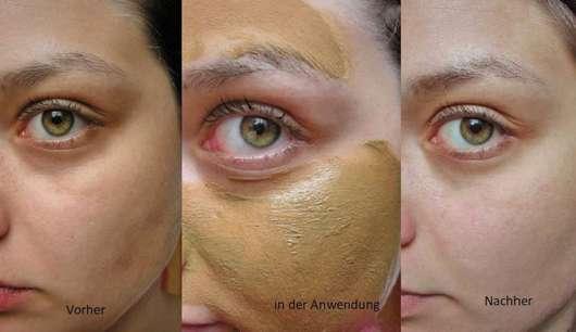 Gesicht ohne/mit Luvos Heilerde Anti-Pickel-Maske