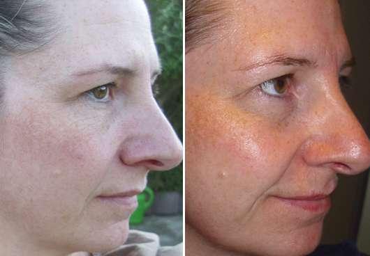Gesicht vor/nach dem Test - Mardouw SKIN CARE Olive Oil