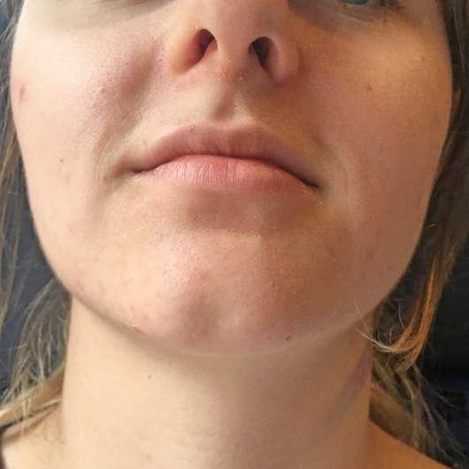 Gesicht nach 4-wöchigem Test - BIO:VÉGANE Bio Grüntee Glow Fluid