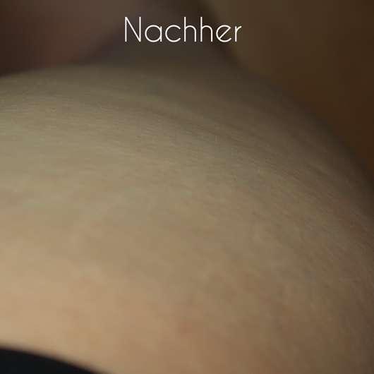 Haut nach Testende - AVON WORKS COOLING TONE Anti-Cellulite Gel