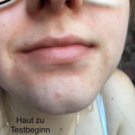 Haut zu Testbeginn - BIO:VÉGANE Bio Grüntee Gesichtswasser
