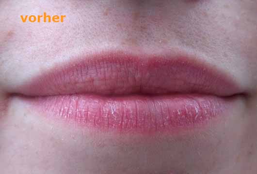 essence wanted: sunset dreamers lip peeling, Farbe: 01 desert crush (LE) - Lippen vor der Anwendung