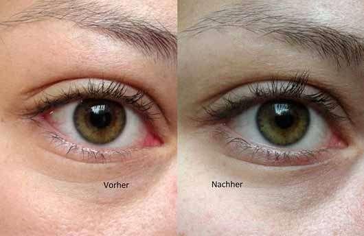 IT Cosmetics Bye Bye Under Eye Concealer, Farbe: Medium (Light-Medium) - Vergleichsbilder Auge