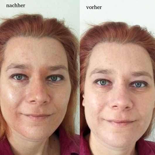 Misslyn Shaping Queen Highlight & Contour Stick, Farbe: 4 Medium - im Gesicht aufgetragen vorher und nachher