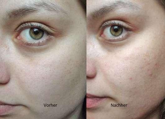 Haut vor/nach dem Test des YOU & OIL Gesichtsöls (Mischhaut)