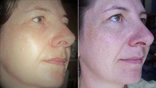 Haut zu Testbeginn (links) // Haut nach 4-wöchigem Test (rechts) - YOU & OIL Gesichtsöl (trockene Haut)