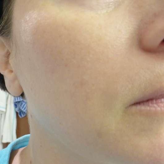 Haut nach 4 Wochen - YOU & OIL Gesichtsöl (Mischhaut)