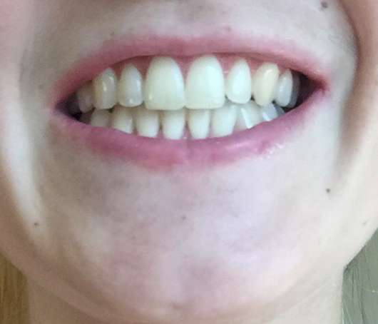 Zähne vor dem Test der Bärbel Drexel Ratanhia Zahnpflege Tabs