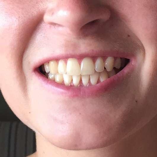 Zähne nach dem Test der Bärbel Drexel Ratanhia Zahnpflege Tabs