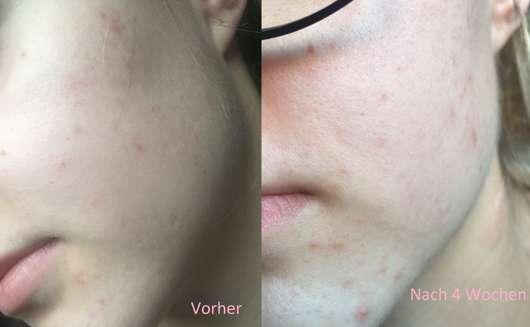 Haut zu Testbeginn / Haut nach 4-wöchigem Test - BIO:VÉGANE Bio Acai Serum
