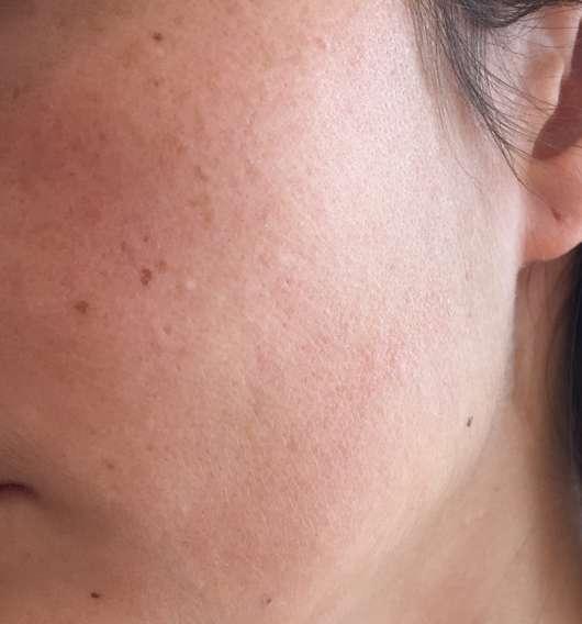 Haut vor dem Test des BIO:VÉGANE Bio Cranberry Serums