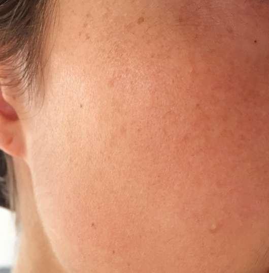 Haut nach dem Test des BIO:VÉGANE Bio Cranberry Serums