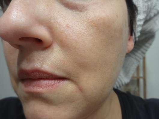 Gesicht vor der Anwendung der DERMAROLLER Mask