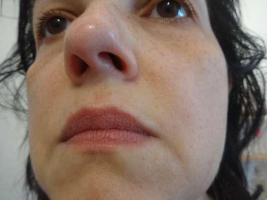 Gesicht nach der Anwendung der DERMAROLLER Mask