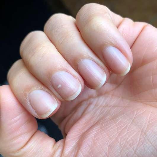 ebelin Nagellackentferner acetonfrei mit Mandelduft - Finger nach der Nagellackentfernung