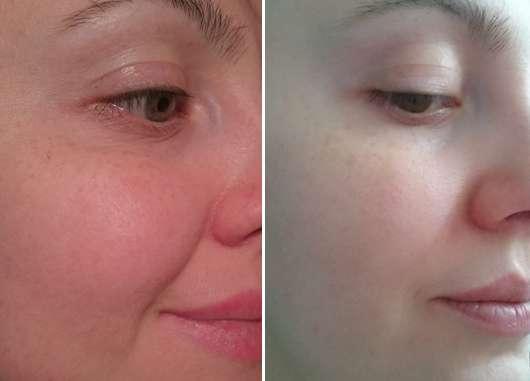 Haut zu Testbeginn / nach 4-wöchigem Test des everdry Antibakterieller Gesichts-Reinigungsschaums