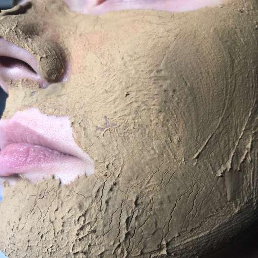 Luvos Heilerde Anti-Pickel-Maske - nach dem Antrocknen auf der Haut