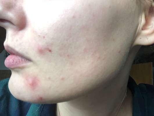 Haut vor der Anwendung der Luvos Heilerde Anti-Pickel-Maske