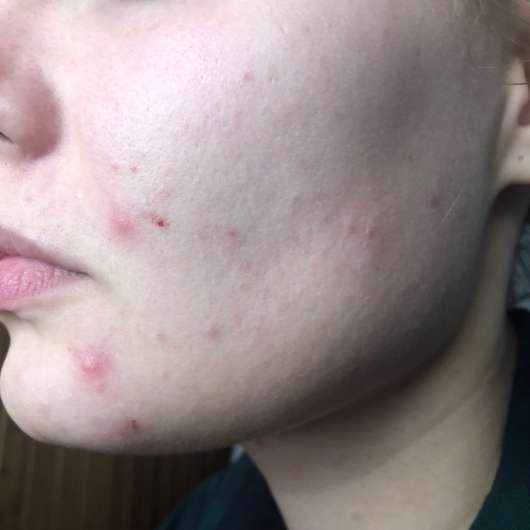 Haut nach der Anwendung der Luvos Heilerde Anti-Pickel-Maske