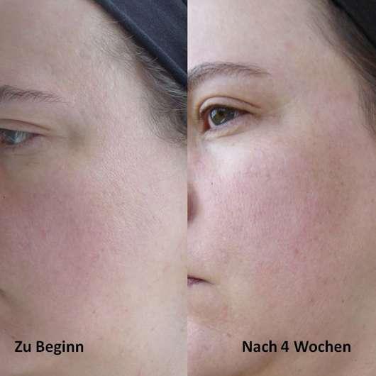 Luvos Waschcreme mit Traubensilberkerzen - Haut zu Testbeginn / Haut nach Testende