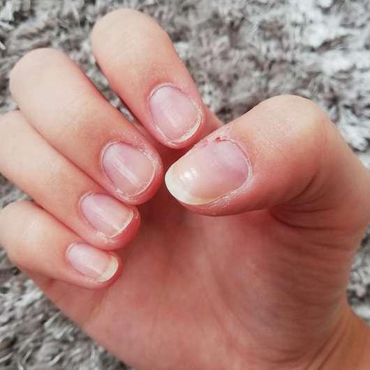 Nägel nach zweiwöchiger Verwendung des p2 cosmetics Nail Care Oils