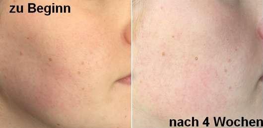 Gesichtshaut zu Testbeginn und nach 4 Wochen