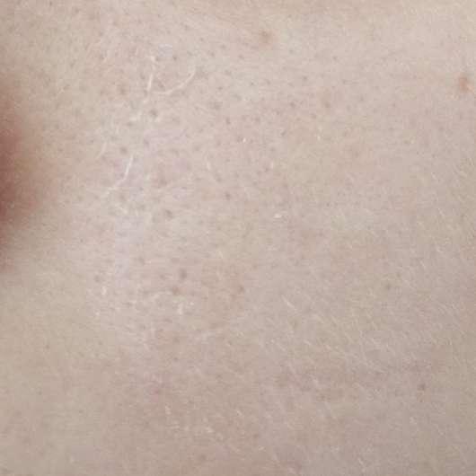 The Botanical Phyto Serum - Hautbild vor der Anwendung