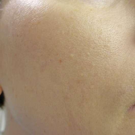 Haut nach Testende - everdry Antibakterielle Gesichtslotion
