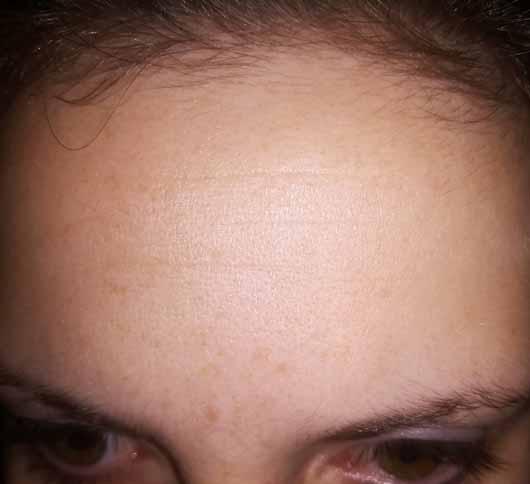 Colibri Cosmetics Hyaluron Konzentrat - Hautbild nachher