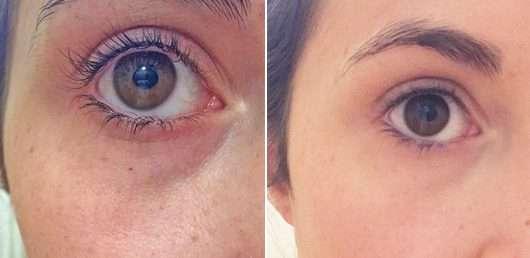 Augenpartie ohne Produkt (links) // mit Produkt (rechts) - essence camouflage full coverage concealer, Farbe: 05 ivory