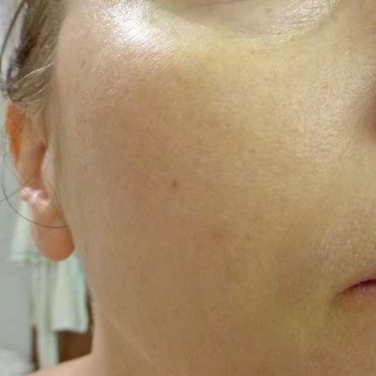 Haut zu Testbeginn - everdry Antibakterielle Gesichtslotion