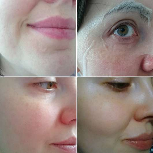Haut vor/während/nach Anwendung der DERMAROLLER Mask