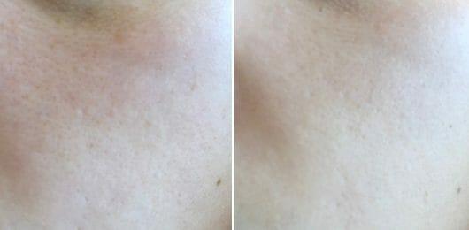 Gesicht ohne Primer (links) // Gesicht mit Primer (rechts)